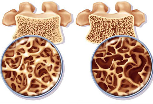 Canxi là khoáng chất quan trọng ảnh hưởng trực tiếp đến sự phát triển xương, mô ở trẻ