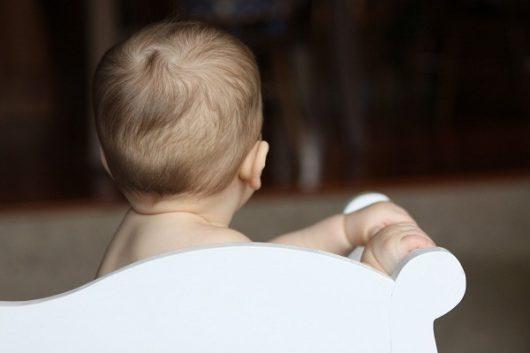 Tóc rụng vành khăn khi thiếu canxi ở trẻ