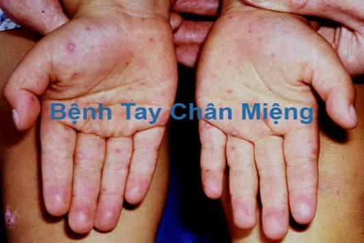 benh-tay-chan-mieng-2
